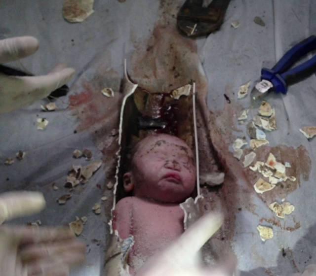 Criança sobrevive a descarga e é encontrada em tubulação de esgoto