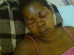 Mulher após agressão do ex-marido (Foto: Reprodução Inter TV)